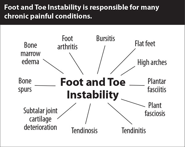 Foot and Toe Instability