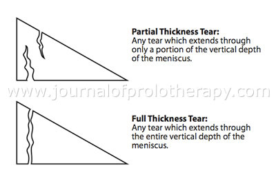Figure 4. Depths of tears in the meniscus.