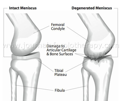 Healthy knee joint with intact meniscus and degenerated knee joint without meniscus.