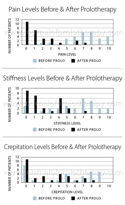 tiffness, and crepitation levels before and after Hackett-Hemwall Prolotherapy in 28 patients with unresolved knee pain due to meniscal injuries