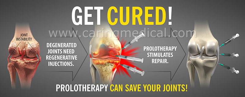 Prolotherapy can save your joints!