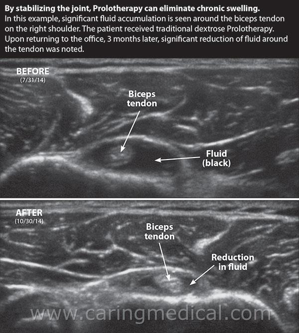 Biceps Tendon Ultrasound