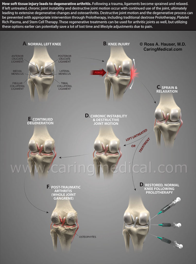 Medial Collateral Ligament Knee Injury