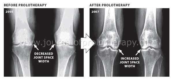Prolotherapy cartilage regeneration