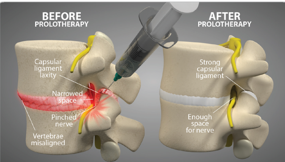 Prolotherapy treatment of spinal stenosis