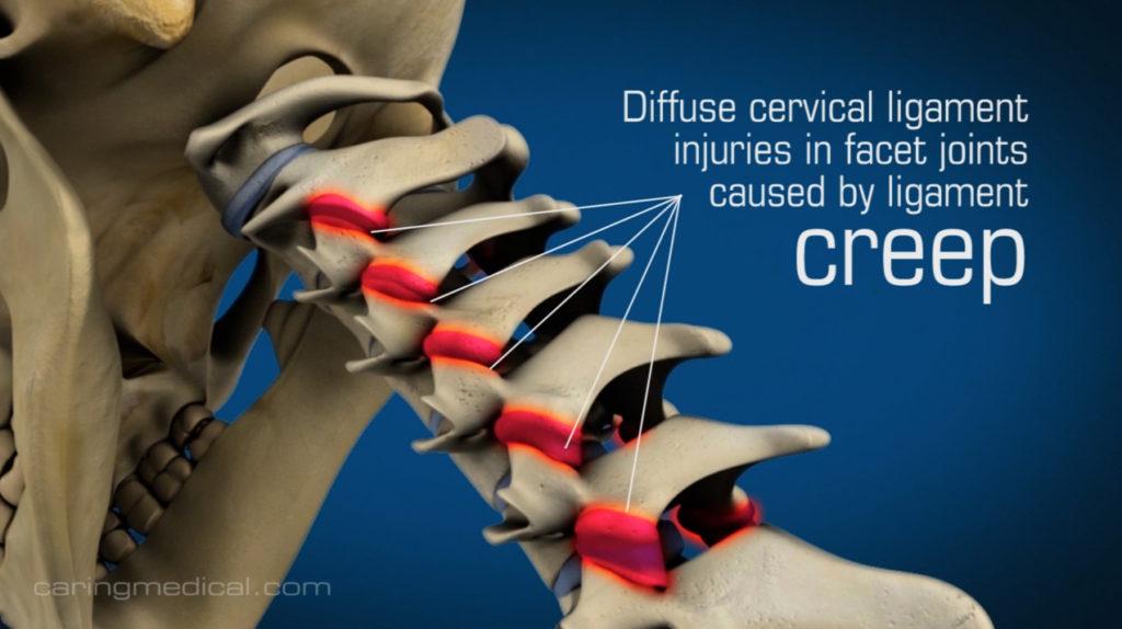 Cervical neck instability is a problem of cervical ligaments