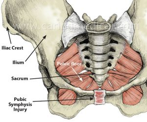 Treating groin pain that does not heal