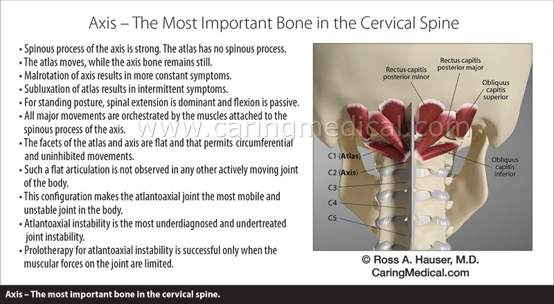 Axis - the most important bone in the cervical spine