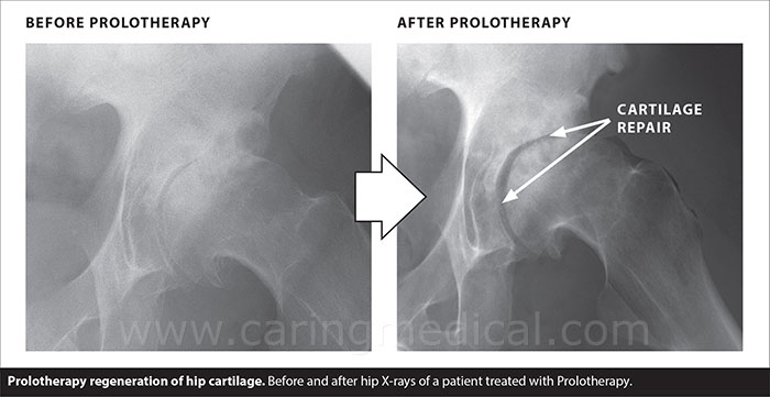 Prolotherapy regeneration of hip cartilage