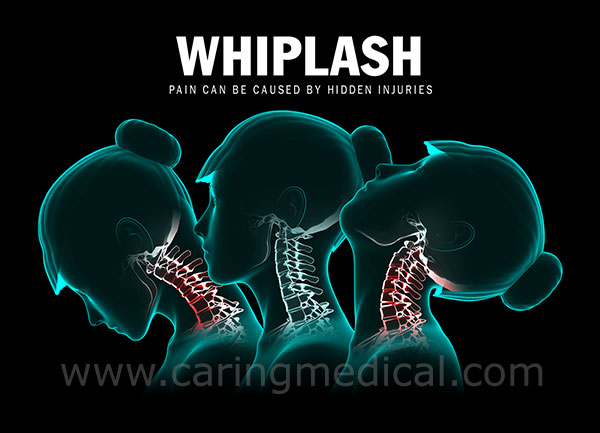 Whiplash Prolotherapy
