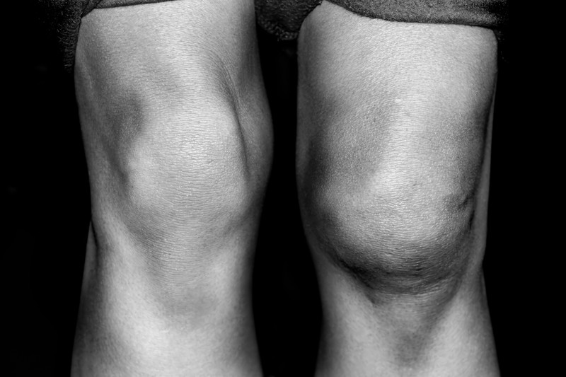 Knee osteoarthritis and Type 2 diabetes