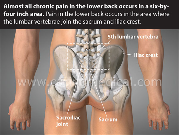 Core area of back pain