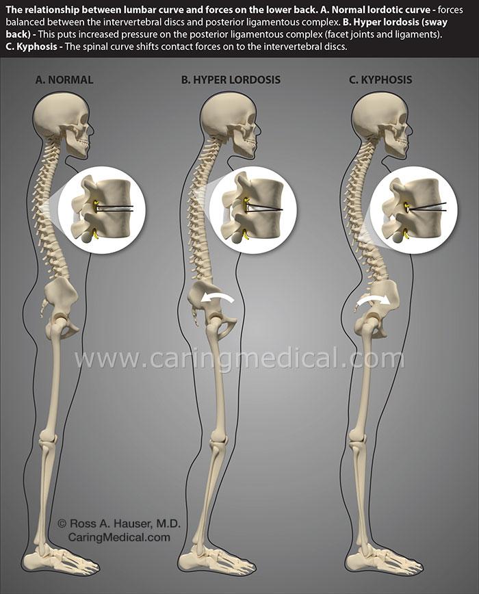 spine curves