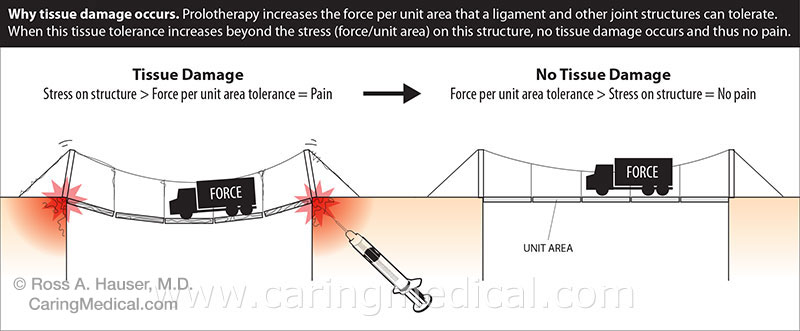 Stress force per unit area
