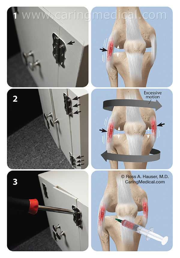 prolotherapy hinge joint analogy
