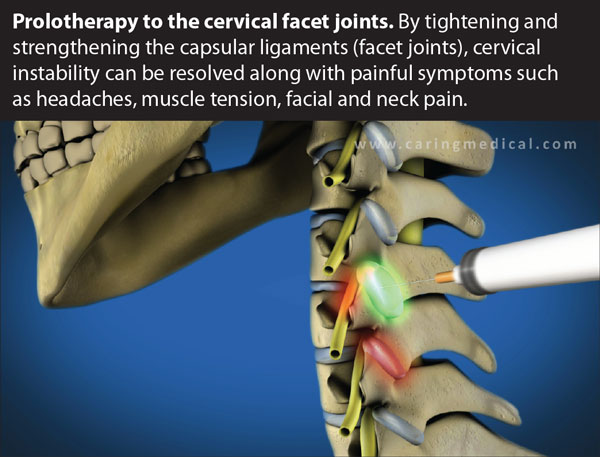 Cervical Prolotherapy