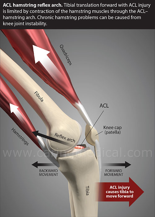 ACL injury hamstring