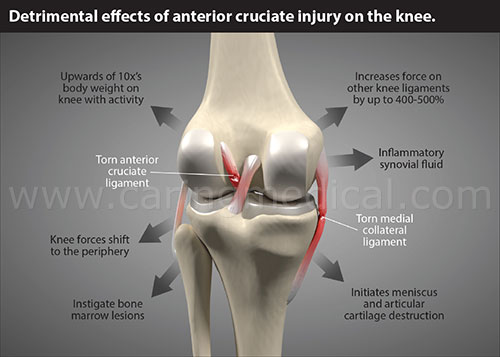 "How soft tissue heals. Following an ACL trauma, the knee ligaments, even if pronounced ""uninjured,"" can still be sprained, stretched,  and loose. If these ligaments are not treated or strengthened, chronic knee instability and a continuous, abnormal, destructive knee motion ensues. This is the origins of knee traumatic osteoarthritis. This destructive joint motion and the degeneative process it causes can be treatment, in many cases, healed, with Prolotherapy and Platelet Rich Plasma injections."