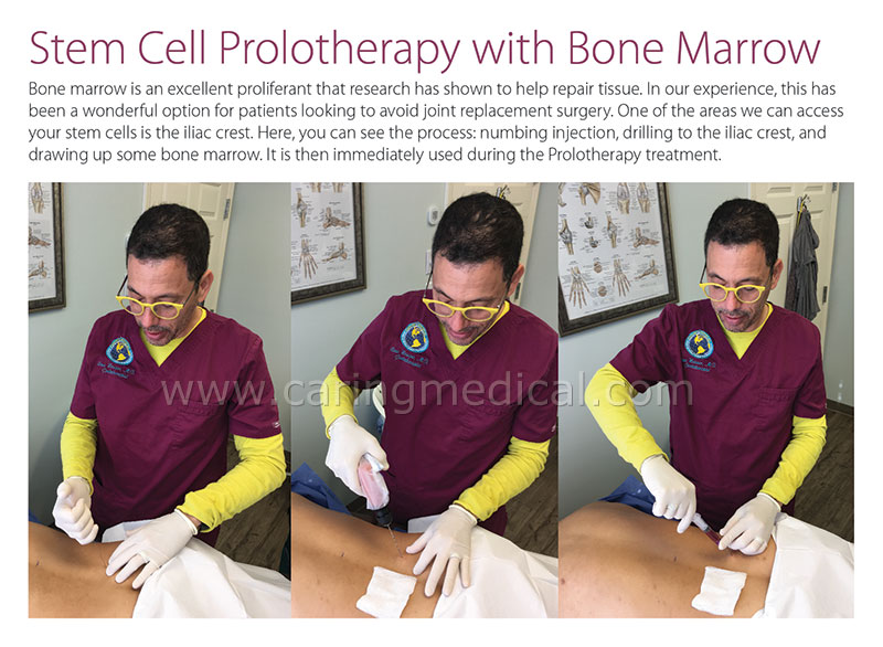 Stem Cell Prolotherapy with Bone Marrow