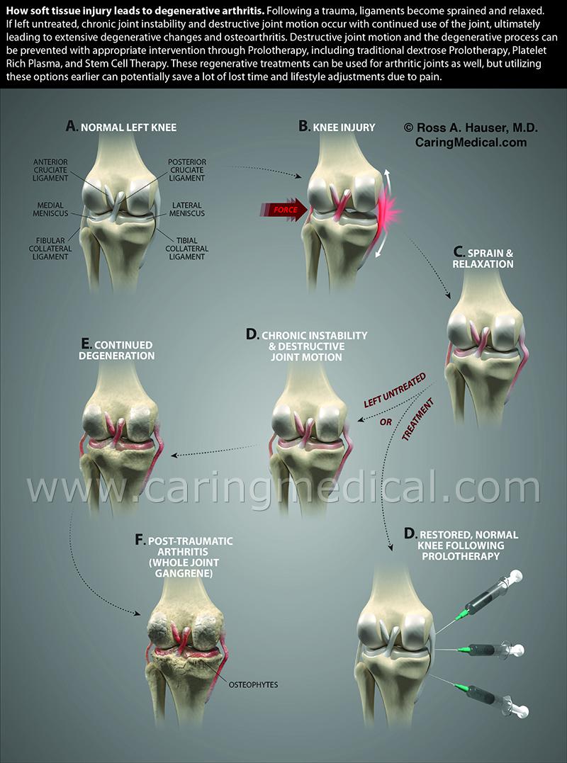 Knee degenerative arthritis
