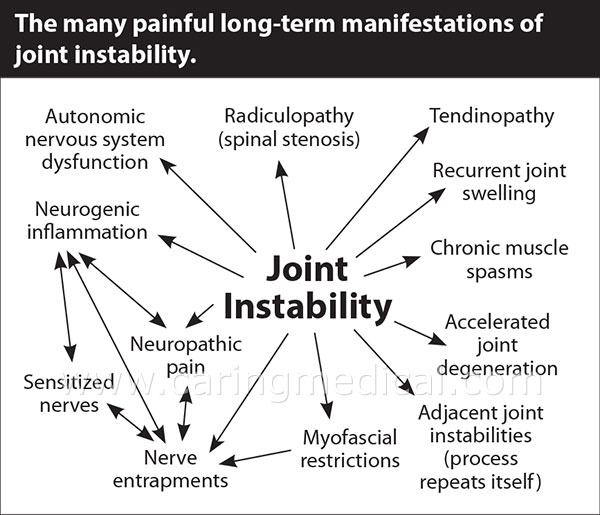 Joint Instability is at the center of all of these bone & joint conditions