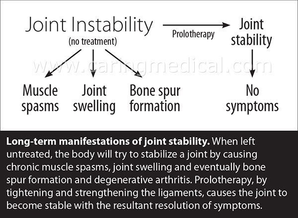 bone spur joint swelling muscle spasm