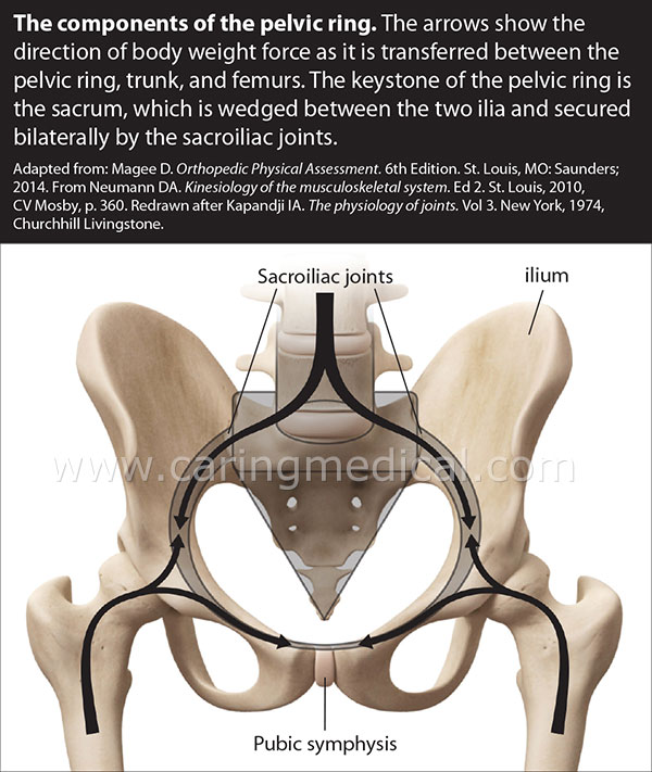 We are seeing the components of the pelvic ring. The arrow shows the direction of the the body weight's force as it is transferred between the pelvic ring, truck, and femurs. The keystone of the pelvic ring is the sacrum which is wedged between the two ilia and secured bilaterally by the sacroiliac joints.