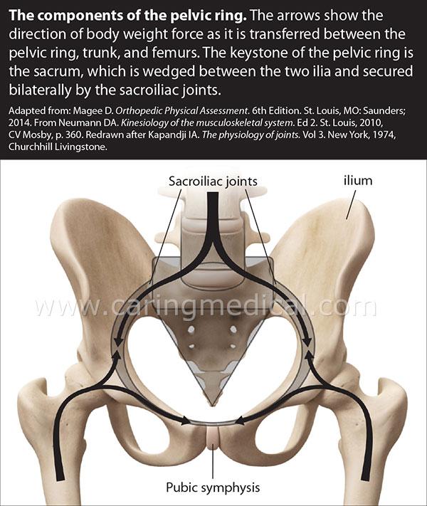 Pelvic ring