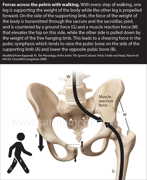 Forces across pelvis while walking