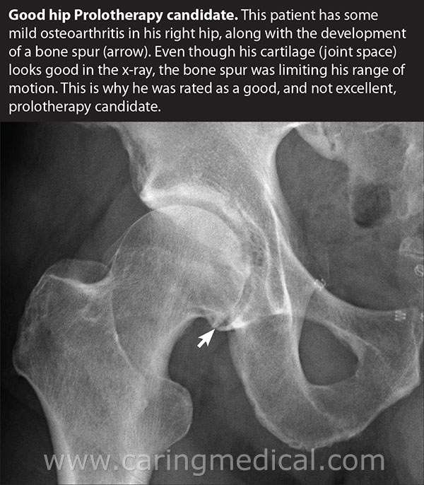 Prolotherapy alternatives to hip replacement