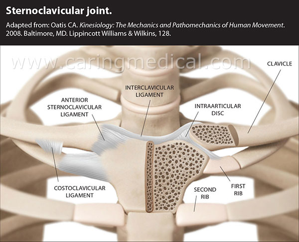 This image displays the sternoclavicular joint. In Prolotherapy treatments, attention is given to the laxity or weakness of the anterior sternoclavicular ligament and Costoclavicular ligament.