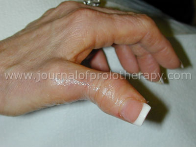 Thumb Joint boutonniere deformity
