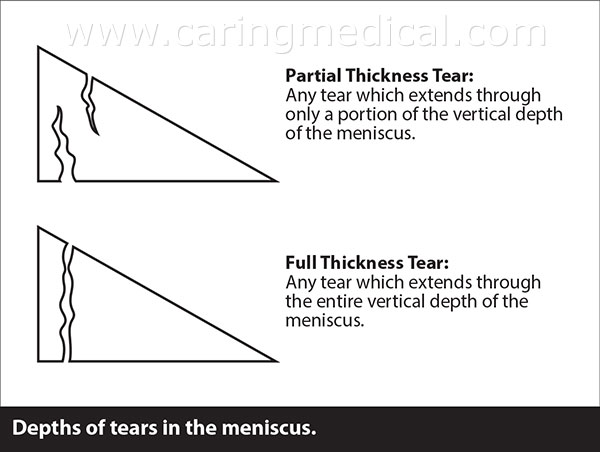 Tears are considered to either be partial thickness tears or full thickness tears. Partial thickness tears are tears that only extend part way across the meniscus, while full thickness tears extend fully across. So, if you have a full thickness flap tear, then it is a tear that cuts across the meniscus completely.