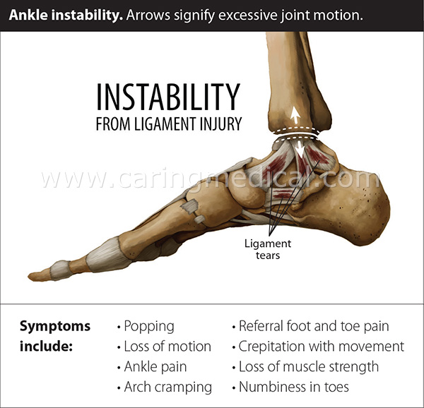This illustration demonstrates ankle instability caused by ankle ligament damage. Ankle ligament damage can be seen in symptoms of ankle popping, loss of motion, pain, arch cramping, foot and toe pain, cracking and crepitation, loss of muscle strength, numbness in toes.