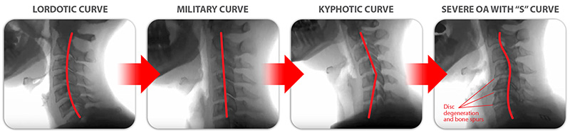 "In our practice we see problems of cervical spine instability caused by damaged or weakened cervical spine ligaments. With ligament weakness or laxity, the cervical vertebrae move out of place and progress into problems of chronic pain and neurological symptoms by distorting the natural curve of the spine. This illustration demonstrates the progression from Lordotic to Military to Kyphotic to ""S"" shape curve."