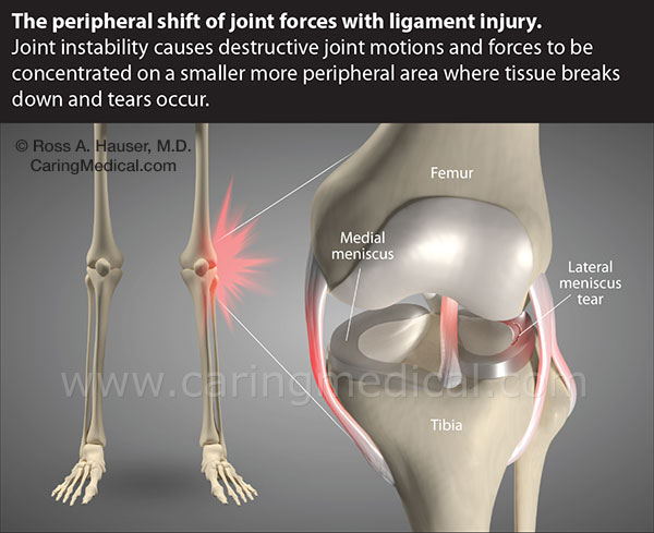 Peripheral shift of joint forces with ligament injury