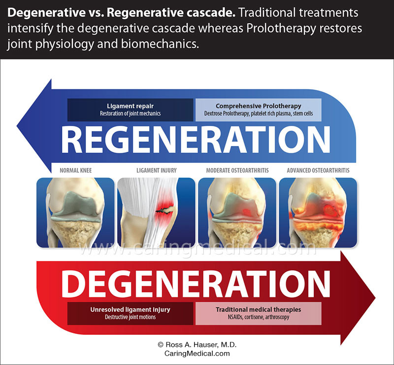 Knee regeneration vs. degeneration