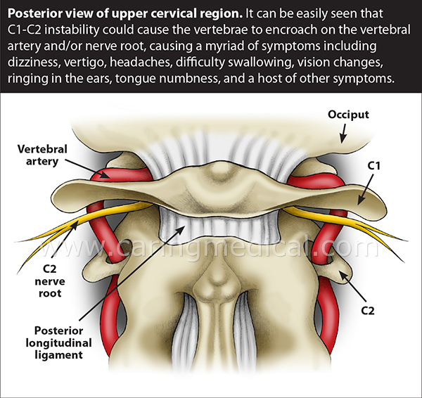 Posterior view of upper cervical region