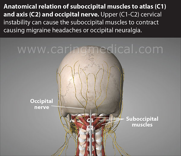 The possible impact of botulinum toxin injections at the location and relation between the suboccipital muscles to the C1 vertebra - the Atlas, and the C2 vertebra - the Axis and the path of the occipital nerve is illustrated. Upper cervical spine instability at C1-C2 can cause pressure on the base of the spine resulting in the contraction and spasm of the suboccipital muscle. This can cause headaches, migraines and occipital neuralgia.