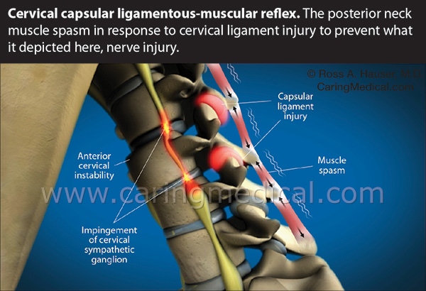 Neck muscle spasm