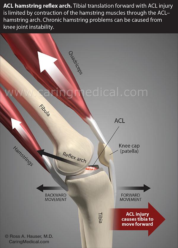 ACL hamstring reflex arch