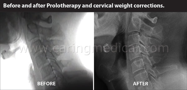 before after cervical weights