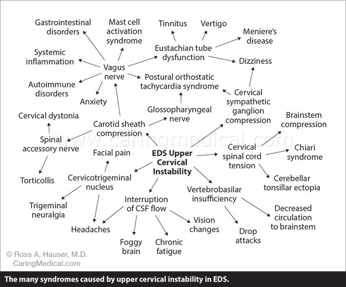 EDS Syndromes