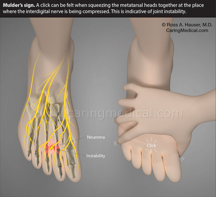 Mulder's sign. A click can be felt when squeezing the metatarsal heads together at the place where the interdigital nerve is being compressed. This is a sign of instability in the metatarsal joint.