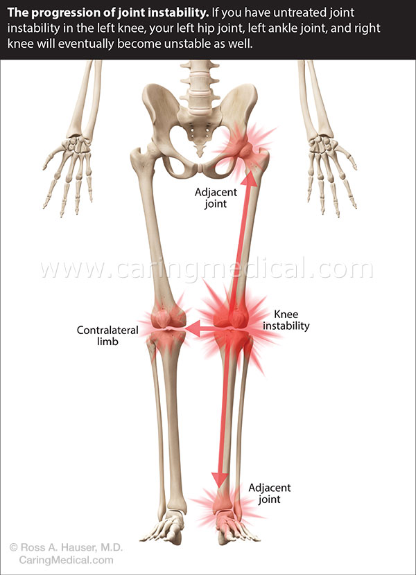 Adjacent joint instability