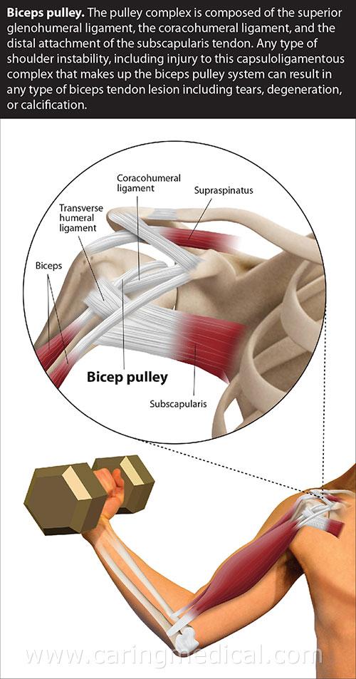 biceps pulley