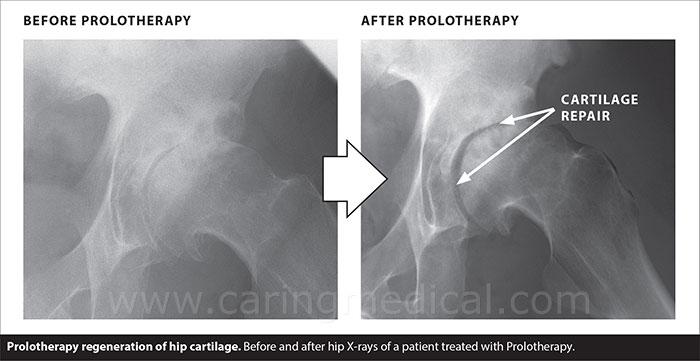 prolo regeneration hip cartilage
