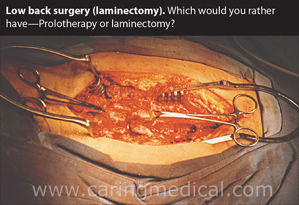 Prolotherapy or Laminectomy