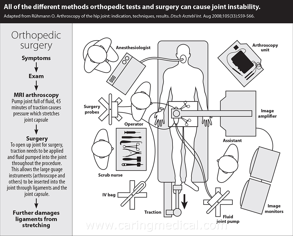 surgery-caused-joint-instability