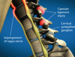 Complications from Vagus Nerve Injury